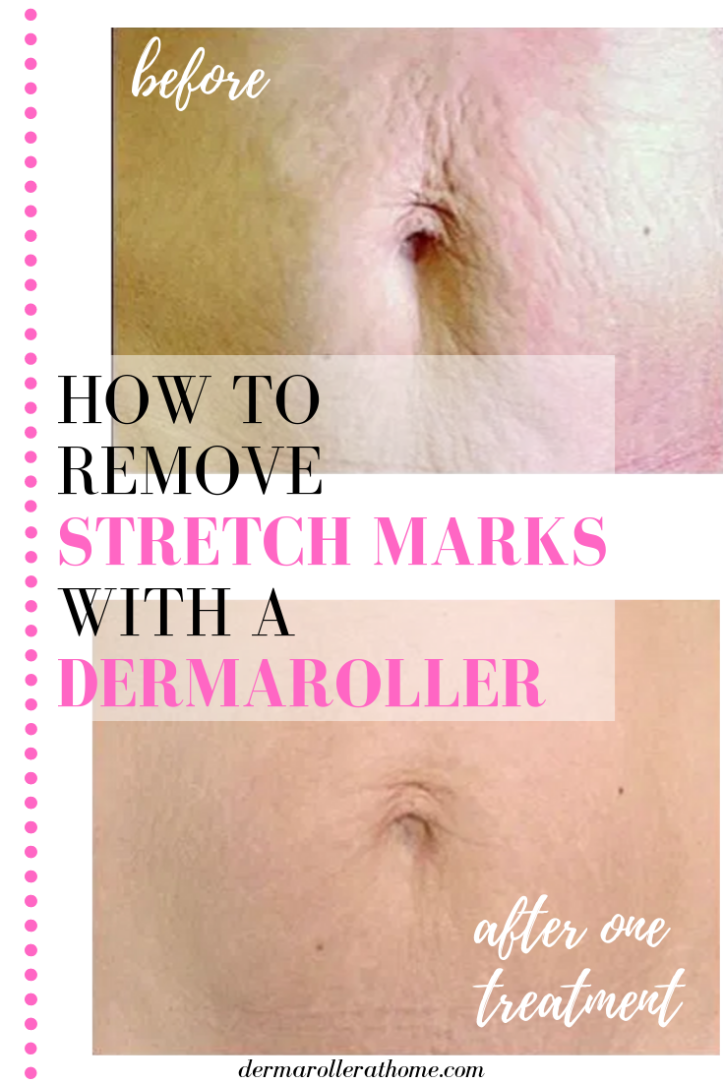 dermaroller stretch marks before and after