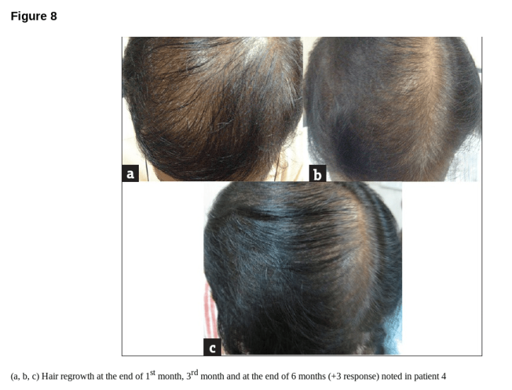 dermaroller hair loss before and after